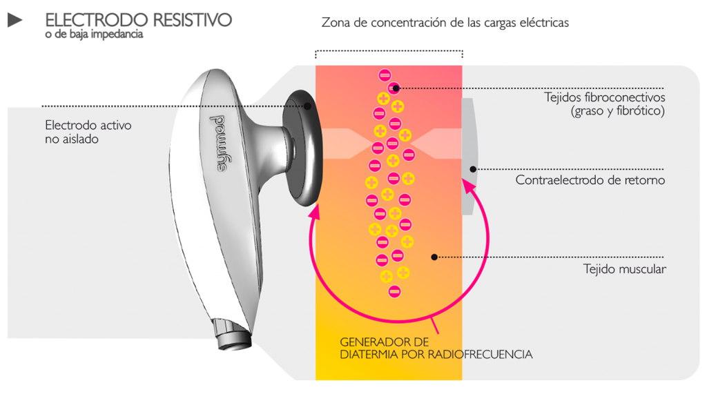 cabezales-symmed-resistivo