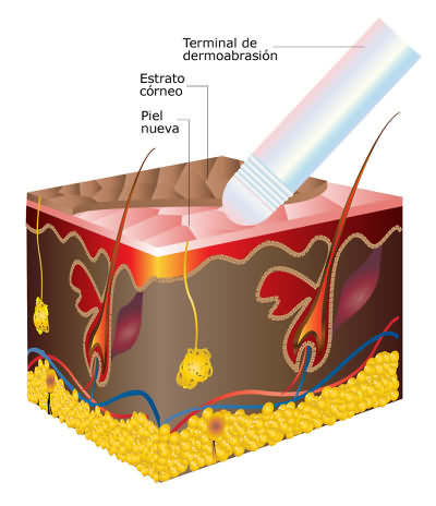 dermoabrasion