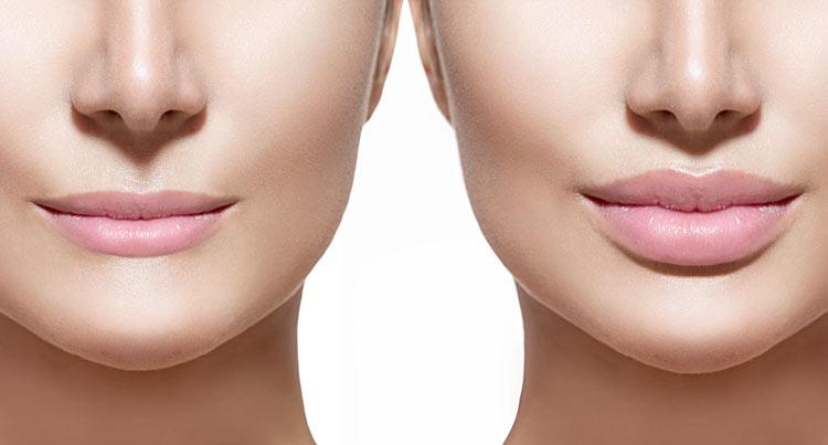 labios ácido hialurónico